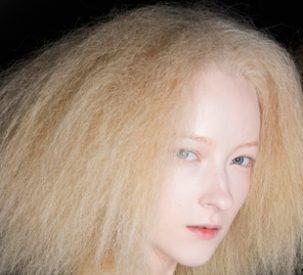 brittle-hair-remedies-p