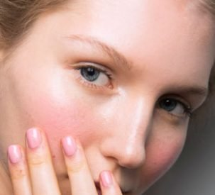 adult-acne-causes-p